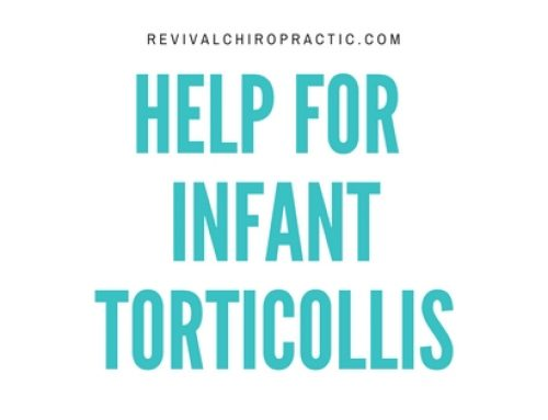 Infant Torticollis